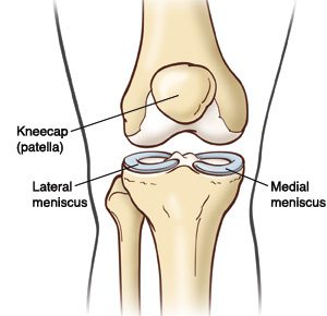 The knee meniscus torn between rehab or surgery newcastle sports the meniscus is a piece a cartilage that sits in the knee between the bones of the thigh femur and the shin tibia its made of a similar type of ccuart Images
