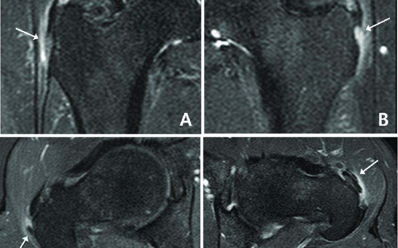 MRI of gluteal tendinopathy