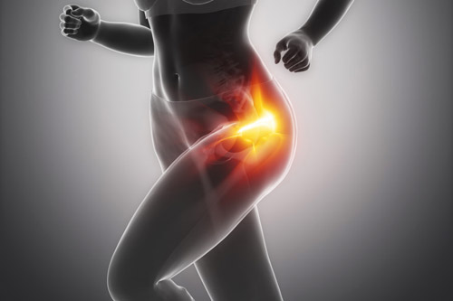 Trochanteric bursitis is a common cause of outer hip pain in active middle-aged women