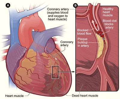 Coronary artery disease as a cause of sudden cardiac death