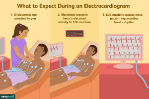 What to expect during an ECG