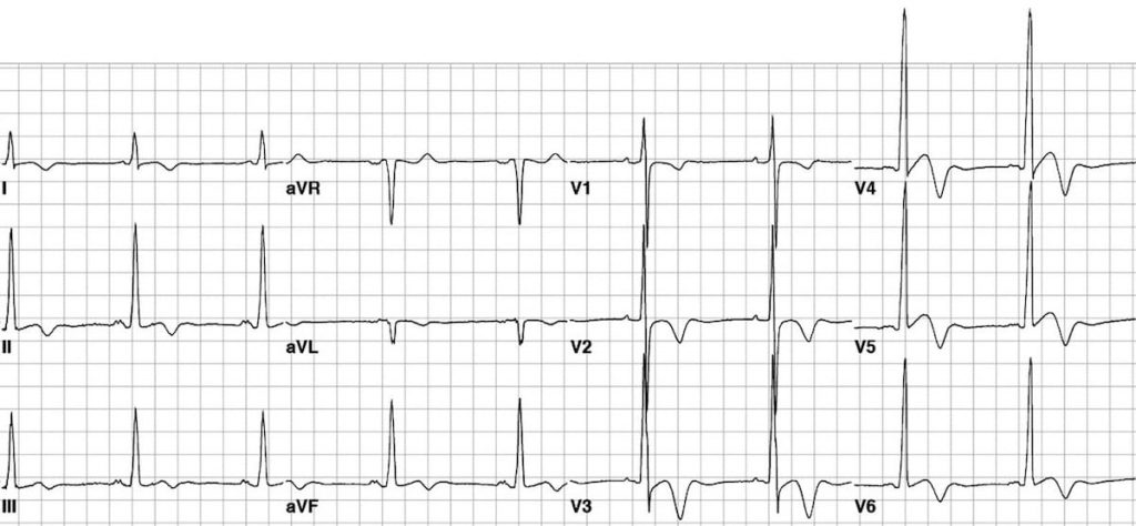 ECG showing hypertrophic cardiomyopathy