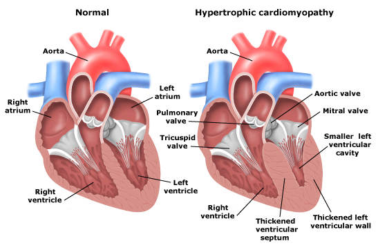 Hypertrophic cardiomyopathy as a cause of sudden cardiac death