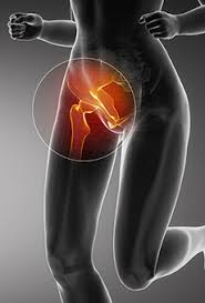 Groin pain pic